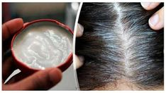Se acabaron las canas y la caída del pelo para siempre. Un solo ingrediente lo resuelve!