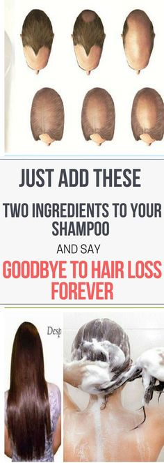 Just Add These Two Ingredients To Your Shampoo And Say Goodbye To Hair Loss..!! #HairLossRemediesNatural