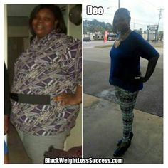 Dee lost 156 pounds with weight loss surgery