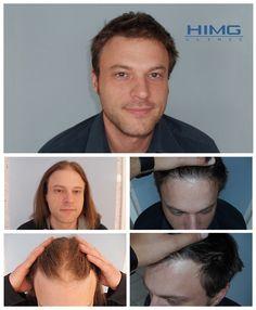 Hajbeültetési eredmények hajátültetés előtt és után készült képekkel - Hajátültetés PROFUE Clinic Implant, Before After Photo, Hair Transplant, Trends, Budapest, Photo And Video, Women, Pictures, Hair Loss