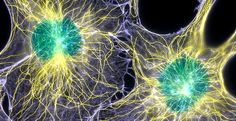 Brain tumor metabolic pathway