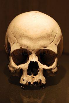 Stock image of 'Human Skull'
