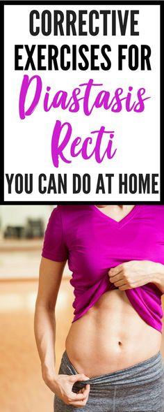 1dfb9285d4b Corrective Exercises For Diastasis Recti You Can Do At Home - learn how to  heal diastasis