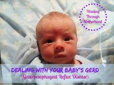 Dealing with your Baby's #GERD #reflux   Gastroesophageal Reflux Disease