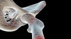 Científicos de Rosario y Tucumán desarrollan un biomaterial para reparar huesos