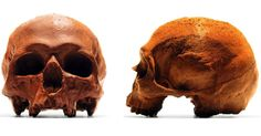 These Anatomically-Correct Chocolate Skulls Prove That Food Is Both Science and Art  These were made using the mold of a real human skull.