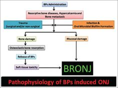Evolution and etiopathogenesis of bisphosphonates induced osteonecrosis of the jaw Kumar V, Sinha RK - North Am J Med Sci