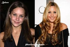Amanda Bynes Plastic Surgery Before And After #celebrity #plasticsurgerysmile #AmandaBynes