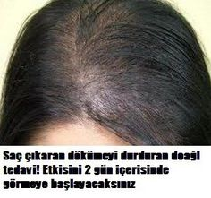 Natural hair cure lasting baldness, yes see the effect within 2 days . Hair Cure, Excessive Hair Loss, Natural Hair Loss Treatment, Hair Fixing, Hair Loss Remedies, Prevent Hair Loss, Health And Beauty, Natural Hair Styles, Hair Loss Treatment