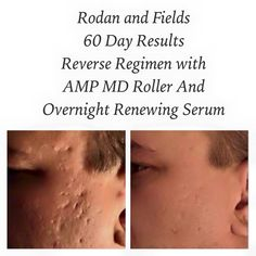 The proof is in the pictures! This is another consultants husband and his results are incredible! Do you have acne scars? I can totally help! Amp Md Roller, Rodan And Fields Redefine, Acne Scars, Good Skin, Serum, Husband, The Incredibles, Skin Care, Pictures