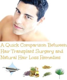 Compair Hair Transplant Surgery and Natural Hair Loss Remedies and Find Out Which One Is The Best For You At www. Hair Remedies For Growth, Home Remedies For Hair, Hair Loss Remedies, Hair Growth, Natural Hair Loss Treatment, Natural Treatments, Hair Transplant Surgery, Luscious Hair, Health