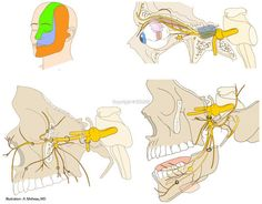 Trigeminal nerve [V] (Ophthalmic nerve; Ophthalmic division [Va; V1] - Maxillary nerve; Maxillary division [Vb; V2] - Mandibular nerve; Mand...