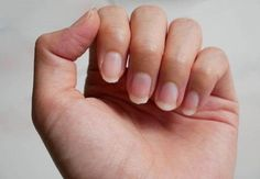 fingernail lack of nutrients and do not make nail not shape and not care, this i… - Top-Trends Cucumber Benefits, Flaky Scalp, Cold Pressed Oil, Cucumber Seeds, Finger, Brittle Nails, Healthy Scalp, Oil Benefits, Strong Hair