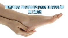 Remedios naturales para el espolon del talon