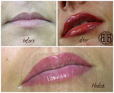 Permanent lips before and after , for more info please visit www.beauty-bar.co.uk