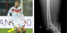 #MatsHummels sustained a thigh injury in #Germany's opening win over #Portugal. Despite leaving the pitch in the second half, Hummels does not plan on missing more than one game for his #injury. Take a look at more #injuries in soccer at http://insideinjuries.com/category/soccer/. #FIFA
