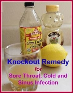 Sinusitis Remedies This knockout home remedy for sore throat, pack with extraordinary ingredients such as fresh lemon juice, organic honey and organic, raw and unfiltered apple cider vinegar, will also knock out any cold or upper respiratory infection. Natural Health Remedies, Natural Cures, Herbal Remedies, Natural Healing, Natural Treatments, Natural Foods, Holistic Healing, Achy Body Remedies, Strep Throat Remedies Natural