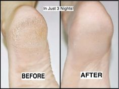 How to Get Rid of Cracked Heels in Just 3 Nights! - Beauty Tips Sore Heels, Soft Feet, Heel Pain, Bright Skin, Beauty Hacks, Beauty Tips, Natural Skin Care, Skincare