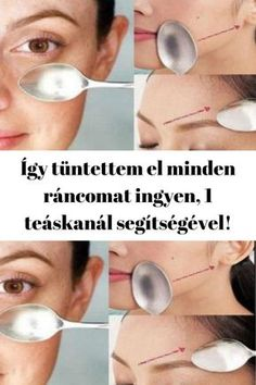Így tüntettem el minden ráncomat ingyen, 1 teáskanál segítségével! - szupertanácsok Herbal Remedies, Natural Remedies, Gout, High Blood Pressure, Belleza Natural, Superfoods, Allrecipes, Herbalism, Minden
