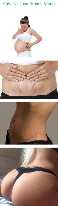 Stretch marks are scar tissue in the dermal layer of the skin that result from…