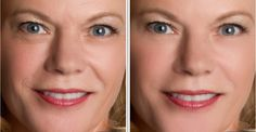 Revitol Anti Aging Cream Before and After Result No Photoshop Anti Aging Mask, Best Anti Aging, Anti Aging Skin Care, Facial Benefits, No Photoshop, Beauty Secrets, Beauty Tips, Beauty Products, Beauty Routines