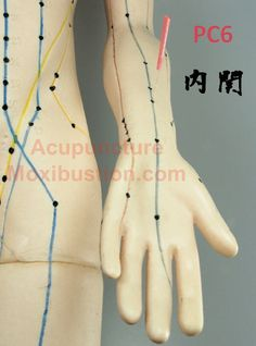Stimulation of a PC6 acupuncture acupressure point has been traditionally used to relieve nausea. A Cochrane systematic review of 40 clinical trials in 2009 by Lee et al. concluded that the use of P6 acupoint stimulation can reduce the risk of nausea and vomiting after surgery, with minimal side effects. http://www.acupuncturemoxibustion.com/acupuncture-points/nausea-and-vomiting-point/