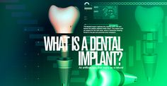 What is dental implants from Impladenta? Dental Implants, It Works, Personal Care, Self Care, Personal Hygiene, Nailed It