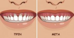 Top Oral Health Advice To Keep Your Teeth Healthy. The smile on your face is what people first notice about you, so caring for your teeth is very important. Unluckily, picking the best dental care tips migh Gum Health, Teeth Health, Oral Health, Dental Health, Dental Care, Public Health, Health Care, Gum Disease Treatment, Health Products