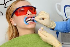 7 Teeth-Whitening Treatments, Ranked in Order of Effectiveness - Oral and Dental Health Center 2020 Zoom Teeth Whitening, Teeth Whitening Procedure, Whitening Skin Care, Teeth Whitening Remedies, Natural Teeth Whitening, Whitening Kit, Zahn Bleaching, Teeth Bleaching, Slide