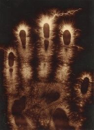 electrograph of a hand, 1900