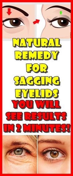 This Simple Remedy Will Help You Get Rid of Saggy Eyelids for Good Losing Weight Tips, How To Lose Weight Fast, Weight Loss, What Is Mediterranean Diet, Saggy Eyelids, Hooded Eyelids, Sagging Skin, Egg And Grapefruit Diet, Tighten Stomach