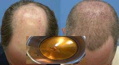 Traitement naturel de la calvitie : Après deux jours les cheveux commencent à repousser avec cette recette