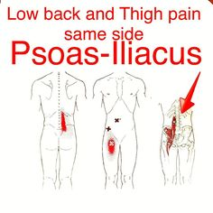The iliopsoas muscles or primary hip flexors are commonly aggravated in runners. If stretching isn't working trigger points and myofascial pain (tight angry muscles and connective tissue) can be caused by a herniated disc and/or irritation to the nerves from your back. Injuries to the discs and/or low back nerves can commonly happen with heavy Olympic lifts with poor form like the patient I saw today. Treating the tight muscles ends up being only a part of the battle because the underlying…