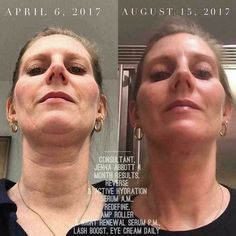 """You had me at 'turkey neck'"" CONSISTENCY for the WIN!!! Jenna's 4 month results are seriously jaw dropping! Who's ready to start your skin transformation today? #BestSkincare"