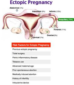 Risk Factors for Ectopic Pregnancy Medicine Notes, Emergency Medicine, Internal Medicine, Ob Nursing, Nursing Notes, Maternity Nursing, Advanced Maternal Age, Pediatric Nurse Practitioner, Pelvic Inflammatory Disease