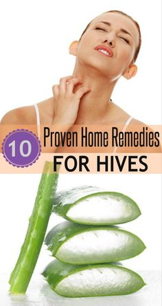 Proven home remedies to reduce #Hives #HomeRemedies to cure hives