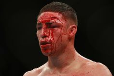 Diego Sanchez after fighting BJ Penn in his prime - The fight that made me a MMA fan!