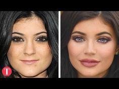 10 Amazing Celebrity Surgery Transformations - YouTube