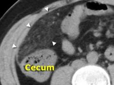 Unenhanced CT depicts an area of fatty tissue with slightly increased density (arrowheads), in the right-upper quadrant. Compare this to normal low-density subcutaneous fat. Diagnosis: omental infarction.