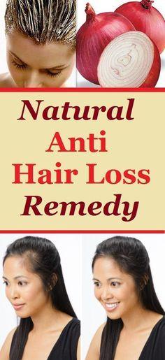 Natural Anti Hair Loss Remedy #CoconutOilAndBakingSodaShampoo #HairRemediesForHairLoss #HairLossNaturalRemedy Baby Hair Loss, Hair Loss Cure, Anti Hair Loss, Stop Hair Loss, Hair Loss Remedies, Prevent Hair Loss, Best Hair Loss Shampoo, Biotin For Hair Loss, Shampoo For Curly Hair