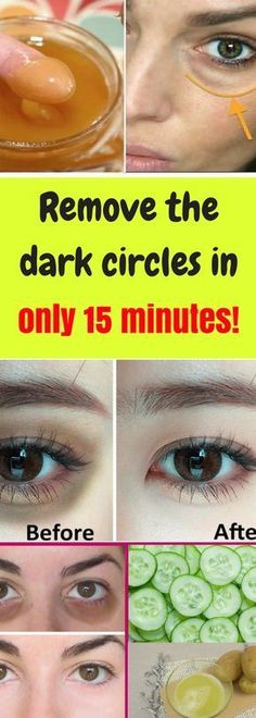Dark circles under the eyes is a common problem for many people. This condition happens as a result of tiredness, not enough sleep, or some other medical conditions. There are many creams on the marke Beauty Hacks Lips, Beauty Tips For Face, Beauty Tricks, Daily Beauty, Makeup Tricks, Beauty Stuff, Beauty Nails, Beauty Secrets, Beauty Care