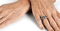 Remueva las manchas oscuras de las manos con esta poderosa receta casera - e-Consejos