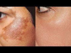PODEROSA receita caseira para remover as manchas do rosto/Melasma,Gravidez,pano branco , Acne etc.. - YouTube