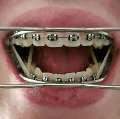 Cute Braces, Braces Girls, Dental Braces, Teeth Braces, Scoliosis Brace, Orthodontic Appliances, Braces Colors, Brace Face, Beautiful Smile