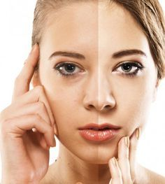 5 Simple Tips to Reduce Skin Pigmentation