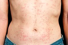Protect yourself from Hot Tub Folliculitis and learn how to treat it if you become infected.