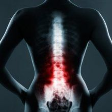Cervical Spinal Stenosis is a neurological syndrome which can coexist with fibromyalgia. Cervical Spinal Stenosi produces similar symptoms. Fitness Workouts, Easy Workouts, Cervical Spinal Stenosis, Shoulder Arthritis, Spine Pain, Rheumatoid Arthritis Treatment, Workout Bauch, Fibromyalgia Pain, Stem Cell Therapy