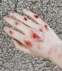 Bleeding knuckles for someone who has just been in a fist fight