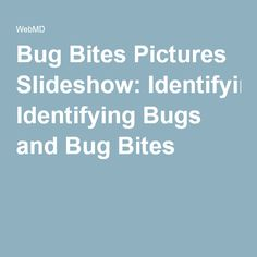 1000 Ideas About Identifying Bug Bites On Pinterest Infected Insect Bite Bite And