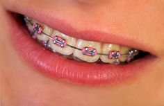Photo about Close up of a beautiful pink braces. Image of healthcare, lipgloss, dentistry - 40990753 Pink Braces, Black Braces, Dental Braces, Teeth Braces, Braces Transformation, Cute Braces Colors, Dental Videos, Braces Tips, Getting Braces